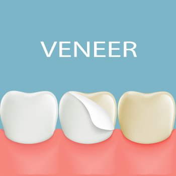 dental - veneers